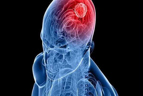 هوش مصنوعی تومور مغزی را ردیابی می نماید