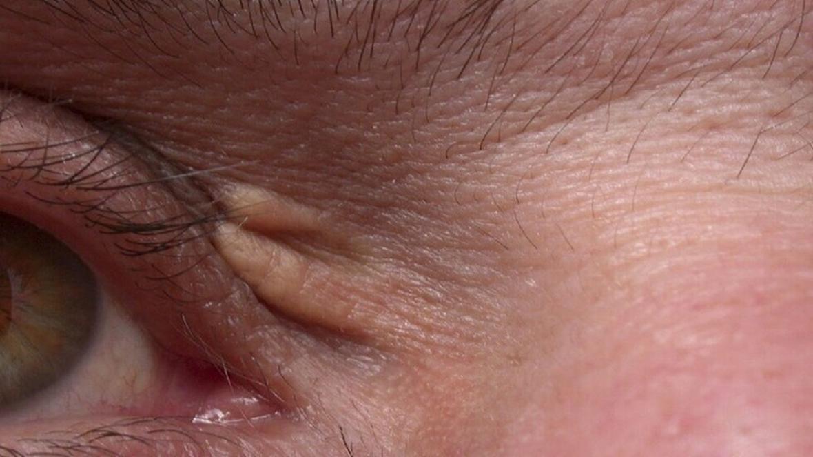 اگر از این دانه های ریز روی پوستتان دارید به زودی سکته می کنید