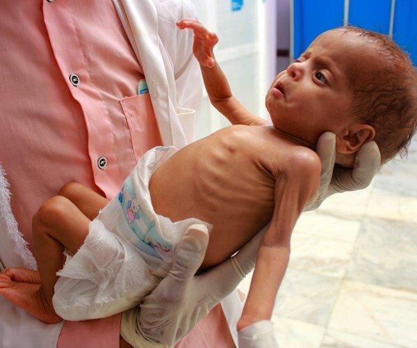 صنعا: ادامه محاصره یمن منجر به مرگ ده ها تن شده